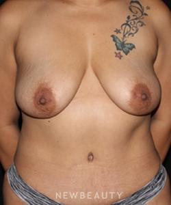 dr-david-boudreault-breast-augmentation-b