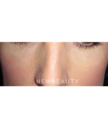 dr-ann-zedlitz-injectables-and-fillers-b