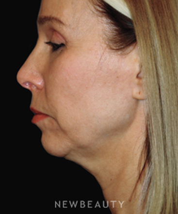 dr-brent-smith-facelift-rhinoplasty-lasers-chin-augmentation-b
