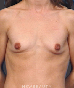 dr-bradley-bengtson-breast-augmentation-b