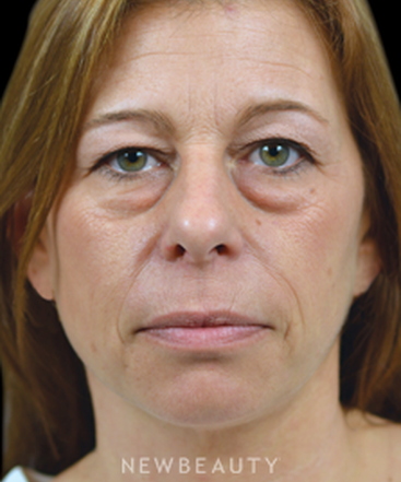 dr-james-marotta-eyelift-b