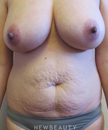 dr-jennifer-boll-breast-augmentation-and-tummy-tuck-b