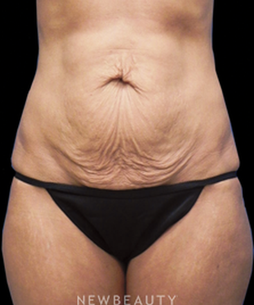 dr-sarah-mcmillan-tummy-tuck-b