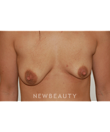 dr-david-rapaport-breast-augmentation-b