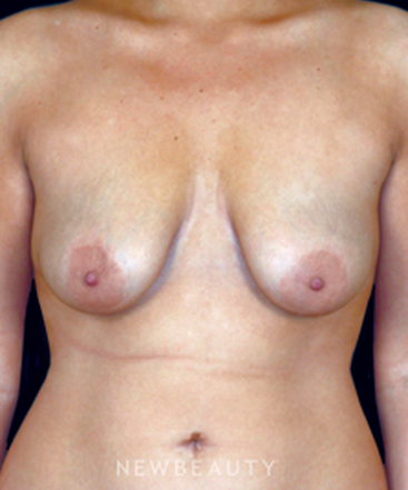 dr-scott-newman-breast-lift-b