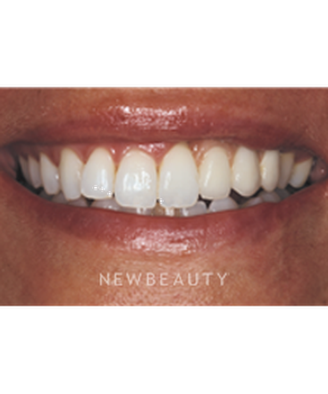 dr-neal-patel-crowns-dental-implants-smile-makeover-b