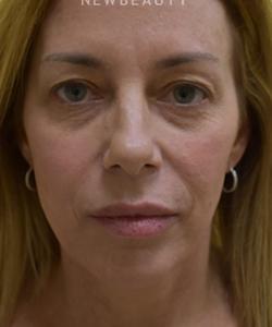 dr-beth-collins-upper-blepharoplasty-b