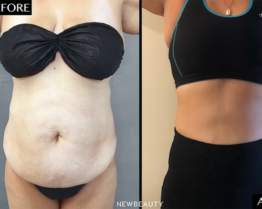 An Innovative Fat-Removal Procedure Changed This Woman's Body With Barely Any Downtime—or Anesthesia