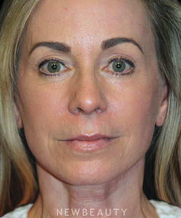 dr-brent-smith-mini-facelift-lasers-b