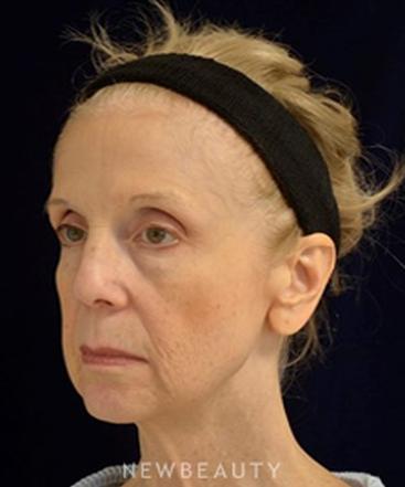 dr-cynthia-m-poulos-blepharoplasty-b