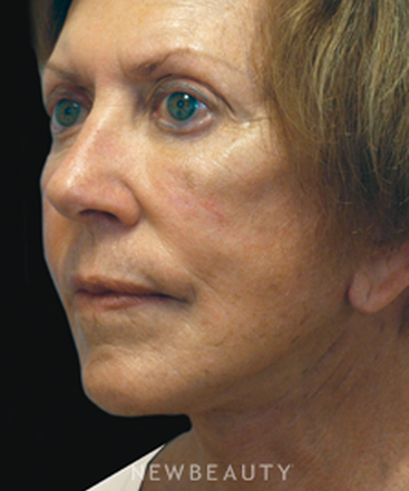dr-cory-yeh-facelift-necklift-b