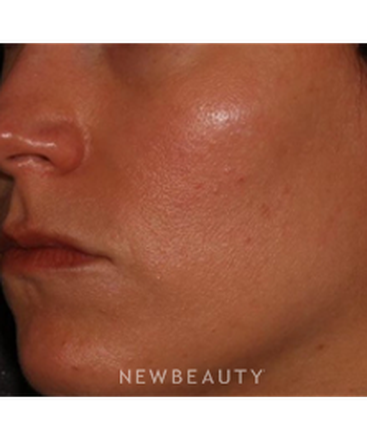 dr-quenby-erickson-microneedling-b