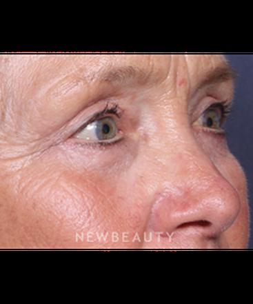 ljcsc-dr-smoot-eyelift-b