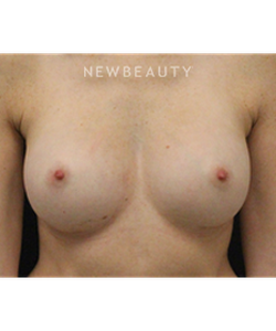 dr-stafford-broumand-breast-augmentation-b