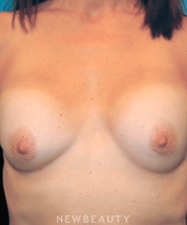 dr-christine-hamori-breast-augmentation-b