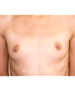dr-sanjay-grover-breast-augmentation-b