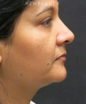 dr-jody-levine-facial-rejuvenation-b