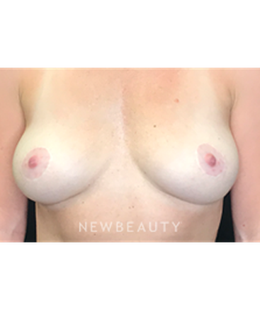 dr-robert-whitfield-breast-implant-removal-b