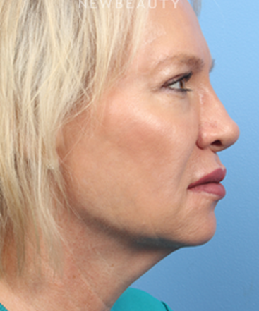 dr-james-bouzoukis-nonsurgical-rhinoplasty-b