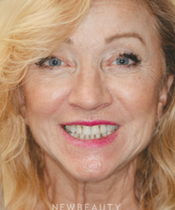 dr-irene-grafman-a-more-youthful-smile-b