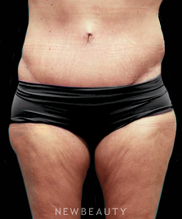 dr-ryan-diederich-tummy-tuck-b