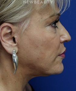 dr-joseph-russo-full-face-rejuvenation-face-ebg-b