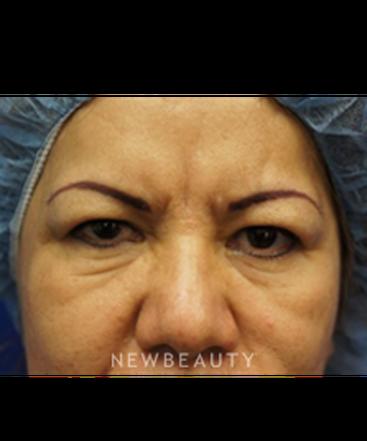 dr-kevin-tehrani-upper-blepharoplasty-b