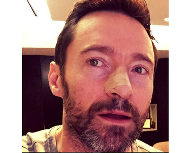 Actor Hugh Jackman Battles Skin Cancer Yet Again