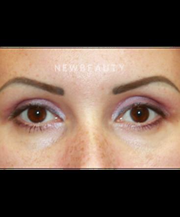 dr-irene-gladstein-upper-blepharoplasty-b