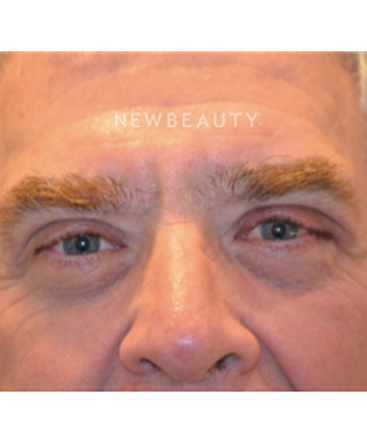 dr-b-aviva-preminger-rejuvenated-eyes-b