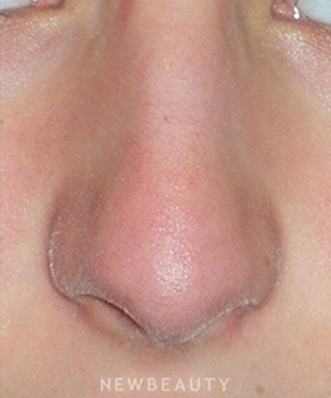 dr-min-ahn-rhinoplasty-b