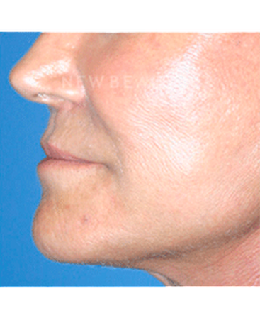 dr-kelly-bomer-liquid-facelift-b