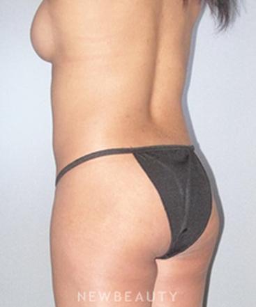dr-german-newall-butt-augmentation-b
