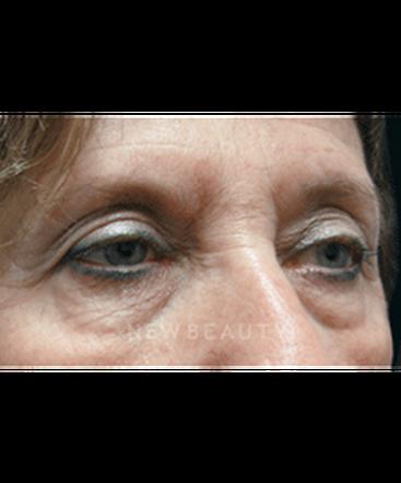 dr-jasmine-mohadjer-eyelift-aesthetic-injectables-b