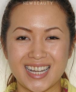 dr-ronald-goldstein-smile-makeover-b