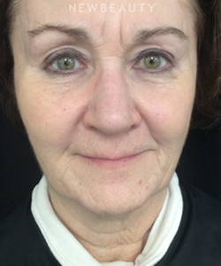 dr-heidi-a-waldorf-injectables-fillers-b