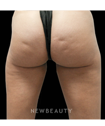 dr-julie-russak-cellulite-b