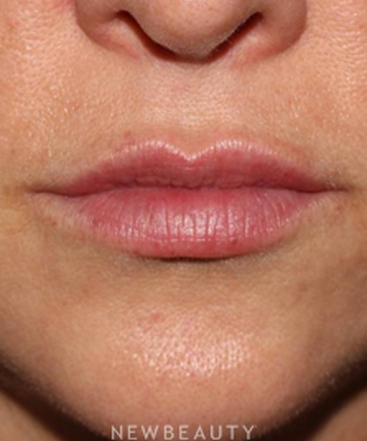 dr-mitchell-ross-lip-filler-b