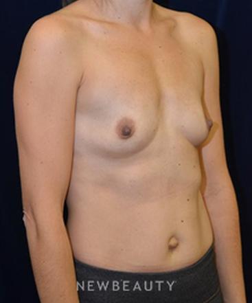 dr-cynthia-m-poulos-breast-augmentation-b