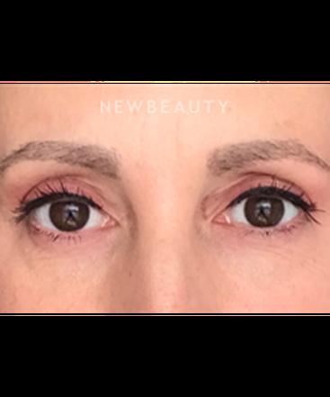 dr-natalie-attenello-eyebrow-restoration-b