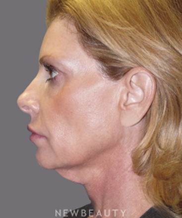 dr-andrew-ordon-facelift-necklift-chemical-peel-injectables-fillers-lasers-b