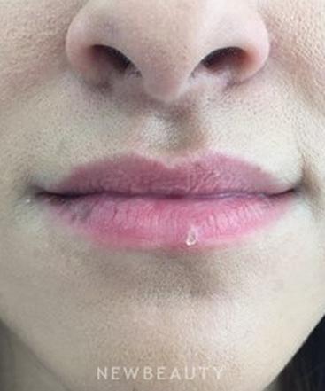 dr-sejal-k-shah-lip-enhancement-b