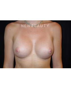dr-larry-pollack-breast-augmentation-b