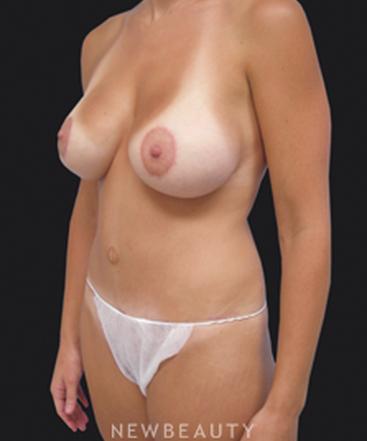 dr-linda-swanson-mommy-makeover-breast-lift-tummy-tuck-b