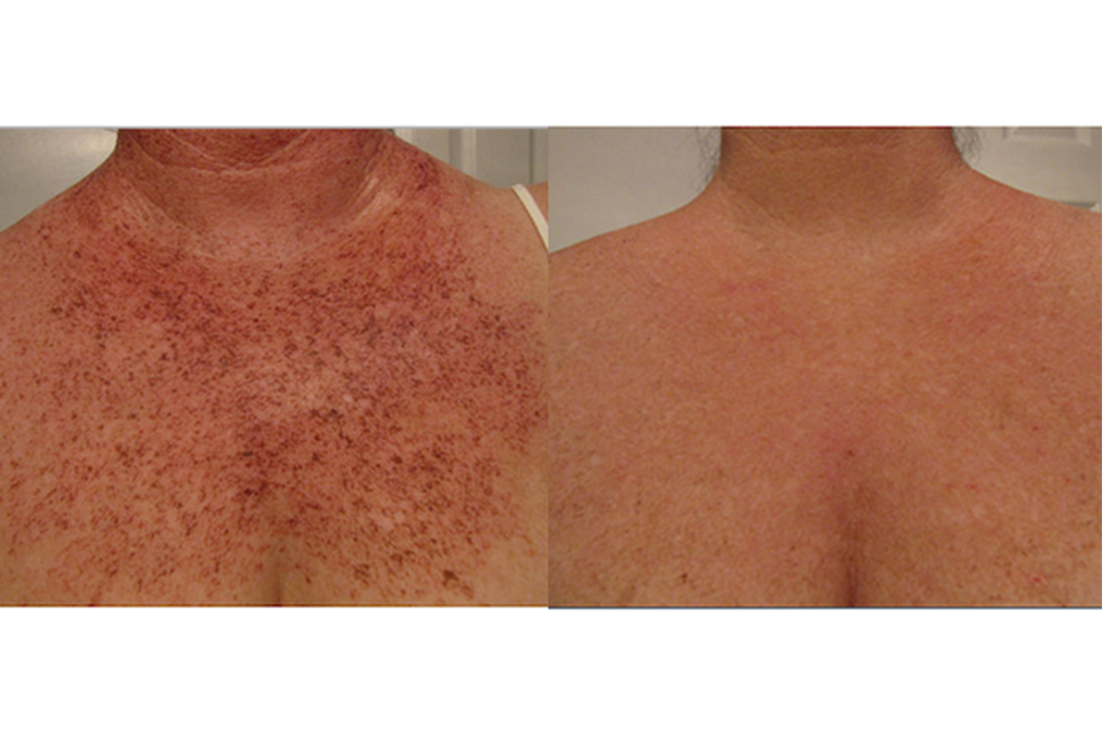 5 Ways To Treat Sunspots On Your Chest Newbeauty