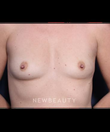 ljcsc-dr-roark-breast-augmentation-b