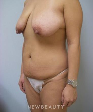 dr-linda-l-swanson-mommy-makeover-b
