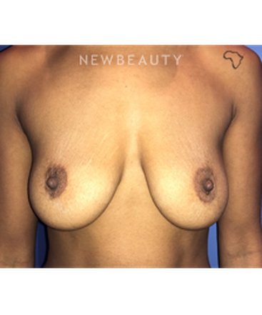 dr-stephen-greenberg-breast-implants-b