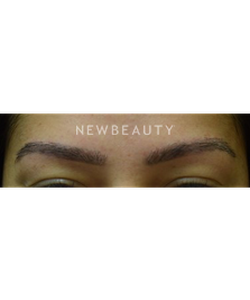 dr-jeffrey-b-wise-eyebrow-hair-restoration-b