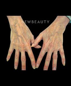 dr-doris-day-reducing-wrinkles-b